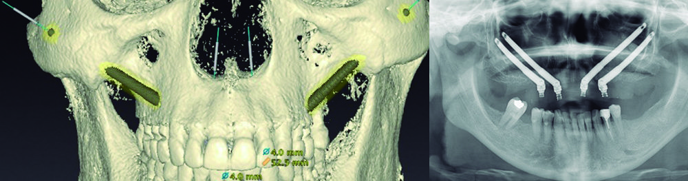 Los implantes zigomáticos: una alternativa a la falta de hueso maxilar