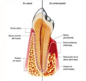 Foto periodoncia