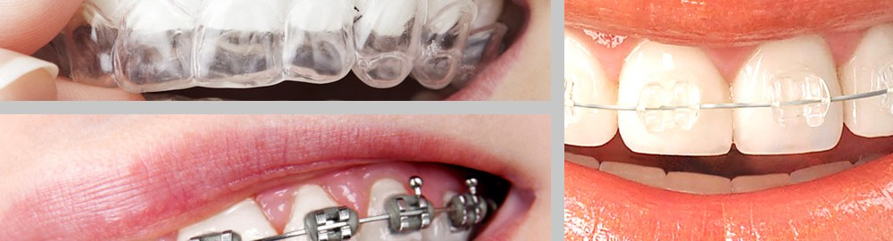 "Orthodontics, much more than wearing ""braces"""