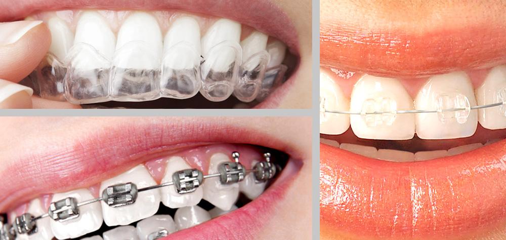 Ortodoncia, mucho más que llevar 'aparato'