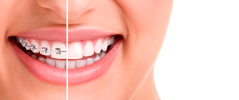 La Ortodoncia en la adolescencia
