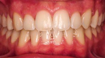Ortodoncia fija: Maloclusión dental clase II