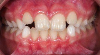 Ortodoncia preventiva: Mordida cruzada