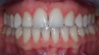 Blanqueamiento: Mejora del tono de su sonrisa