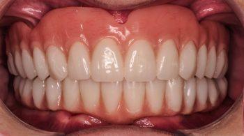 Odontología de alto rendimiento
