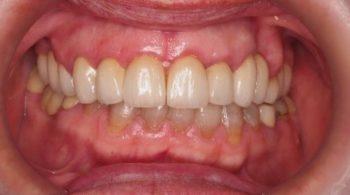 Carillas, periodoncia y estética