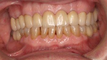 Coronas, implantes y rehabilitación