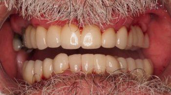 Implantes, puentes y coronas
